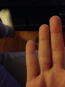The blistering of my finger.